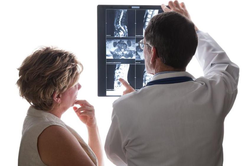 arthrose colonne vertebrale