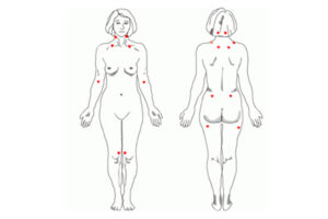 Fibromyalgie points de Yunus
