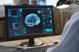 La neuro imagerie cérébrale dans la fibromyalgie