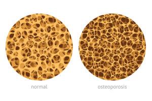Les 7 commandements pour prévenir l'ostéoporose